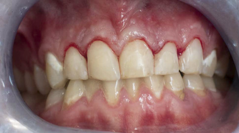 COMPOSITE-FILLINGS-afterb